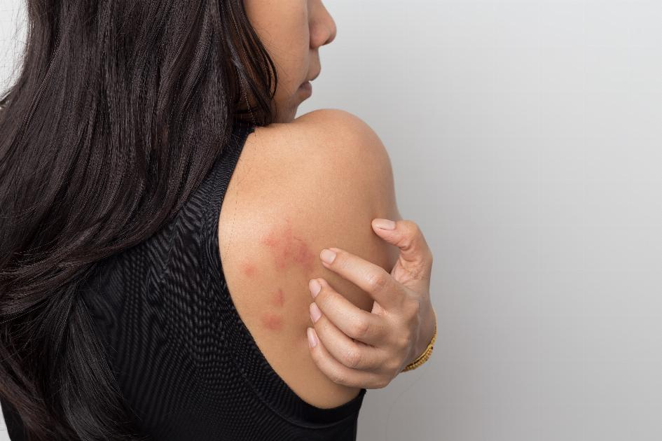 thumbnail of There are Many Common Rash Types