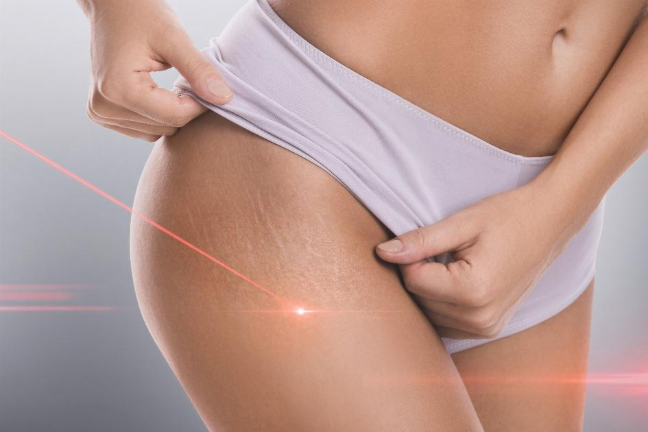 thumbnail of The Appearance of Stretch Marks Has Multiple Treatments